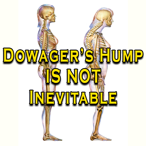 Dowager's Hump Is Not Inevitable
