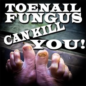 Toenail Fungus Can Kill You